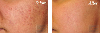 Acne & Acne Scarring - Before and After Case 4