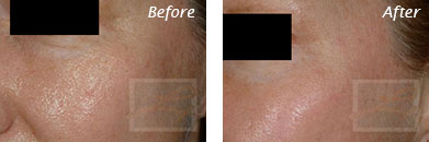 Eyes - Before and After Case 16