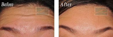 Fine Lines, Wrinkles & Folds - Before and After Case 4