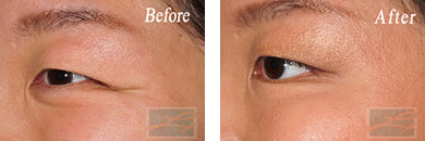 Eyes - Before and After Case 21