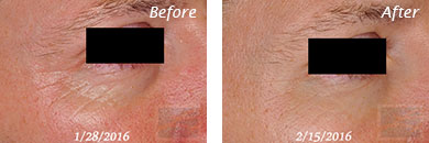 Fine Lines, Wrinkles & Folds - Before and After Case 1