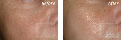 Fine Lines, Wrinkles & Folds - Before and After Case 13