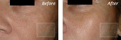 Fine Lines, Wrinkles & Folds - Before and After Case 14