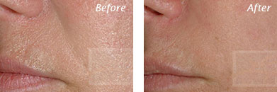 Fine Lines, Wrinkles & Folds - Before and After Case 15