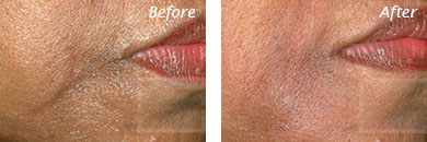 Fine Lines, Wrinkles & Folds - Before and After Case 16