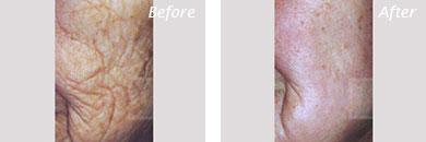Fine Lines, Wrinkles & Folds - Before and After Case 18