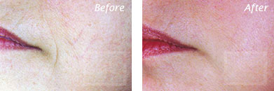 Fine Lines, Wrinkles & Folds - Before and After Case 19