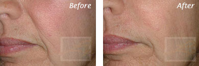 Fine Lines, Wrinkles & Folds - Before and After Case 20
