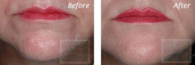 Fine Lines, Wrinkles & Folds - Before and After Case 22