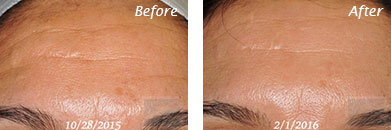 Fine Lines, Wrinkles & Folds - Before and After Case 2