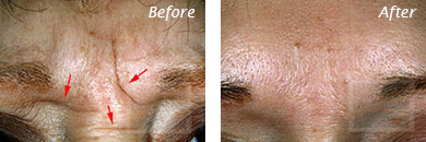 Fine Lines, Wrinkles & Folds - Before and After Case 24