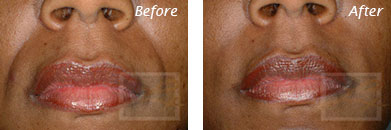 Fine Lines, Wrinkles & Folds - Before and After Case 25