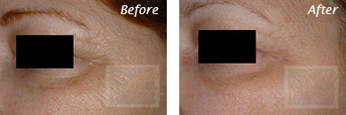 Fine Lines, Wrinkles & Folds - Before and After Case 26