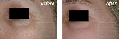 Fine Lines, Wrinkles & Folds - Before and After Case 27