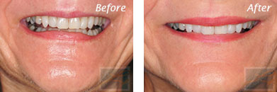 Fine Lines, Wrinkles & Folds - Before and After Case 31