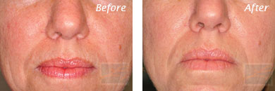 Fine Lines, Wrinkles & Folds - Before and After Case 32