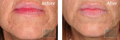Fine Lines, Wrinkles & Folds - Before and After Case 6