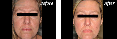 Fine Lines, Wrinkles & Folds - Before and After Case 33