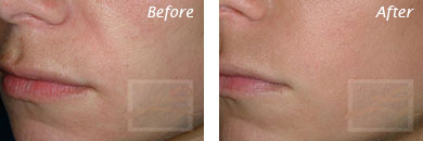 Fine Lines, Wrinkles & Folds - Before and After Case 34