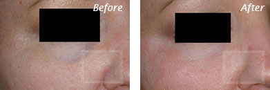 Fine Lines, Wrinkles & Folds - Before and After Case 35