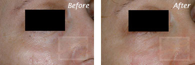 Fine Lines, Wrinkles & Folds - Before and After Case 36