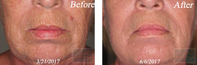 Fine Lines, Wrinkles & Folds - Before and After Case 42
