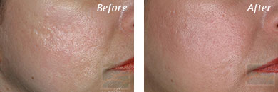 Fine Lines, Wrinkles & Folds - Before and After Case 55