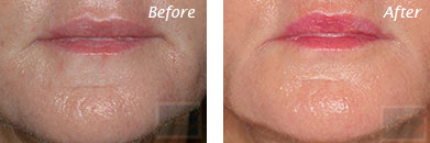Fine Lines, Wrinkles & Folds - Before and After Case 9