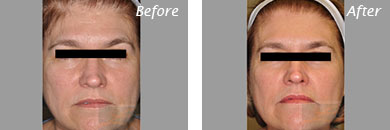 Fine Lines, Wrinkles & Folds - Before and After Case 10