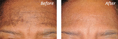 Fine Lines, Wrinkles & Folds - Before and After Case 11