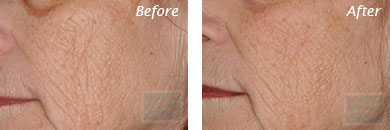 Fine Lines, Wrinkles & Folds - Before and After Case 12