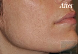 Dermatologist New Orleans - Fraxel Restore, After