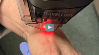 Dr. Mary Lupo discusses Fraxel Dual resurfacing laser improves
