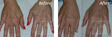 Hands - Before and After Case 7