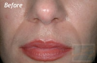 Dermatologist New Orleans - Juvederm, Before