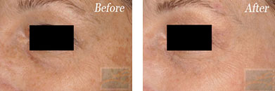 IPL - Before after gallery image 32