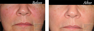 IPL - Before after gallery image 34