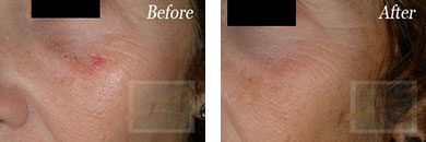 IPL - Before after gallery image 37