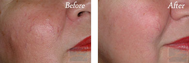 IPL - Before after gallery image 39