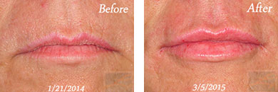 Juvederm volbella xc - Before after gallery image 1
