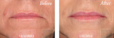 Juvederm volbella xc - Before after gallery image 2