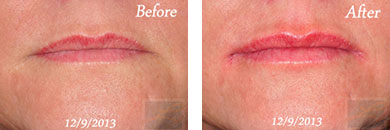 Juvederm volbella xc - Before after gallery image 3