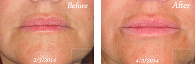 Juvederm volbella xc - Before after gallery image 4