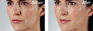 Juvederm Vollure XC - Before after gallery image 1