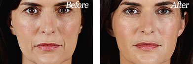 Juvederm Vollure XC - Before after gallery image 2