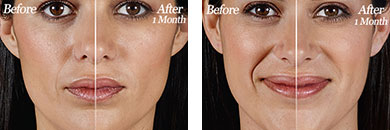 Juvederm Vollure XC - Before after gallery image 3