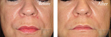 Juvederm voluma - Before after gallery image 3