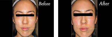Juvederm voluma - Before after gallery image 4
