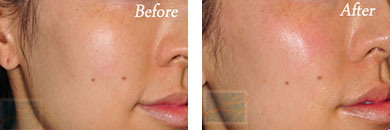Juvederm voluma - Before after gallery image 5