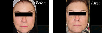 Juvederm voluma - Before after gallery image 6